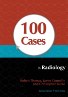 100 Cases İn Radiology