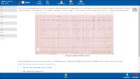 Usmle Rx Qbank 2017 Step 1 Cardiology Anatomy